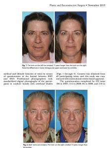 Médecine esthétique du visage : effets du tabac sur le visage. Comparaison entre les vrais jumeaux