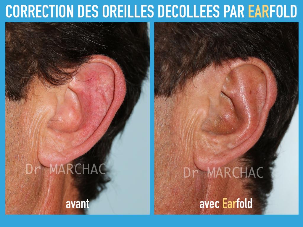 Avant/après correction des oreilles décollées par implant Earfold