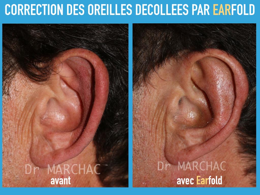 Photos avant/après correction des oreilles décollées par Earfold