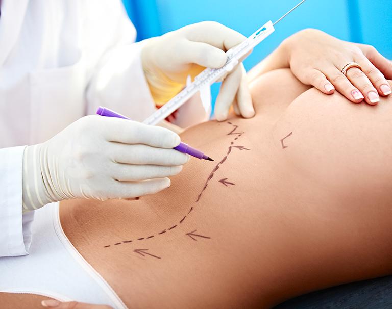 Nouvelles techniques de sutures pour la chirurgie plastique et esthétique
