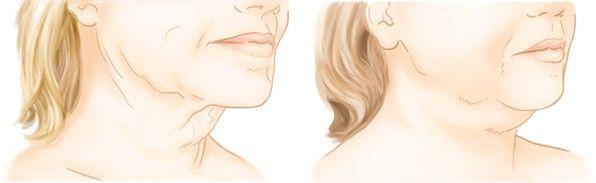 Lifting du cou à Paris - Chirurgie esthétique avec le Dr Marchac