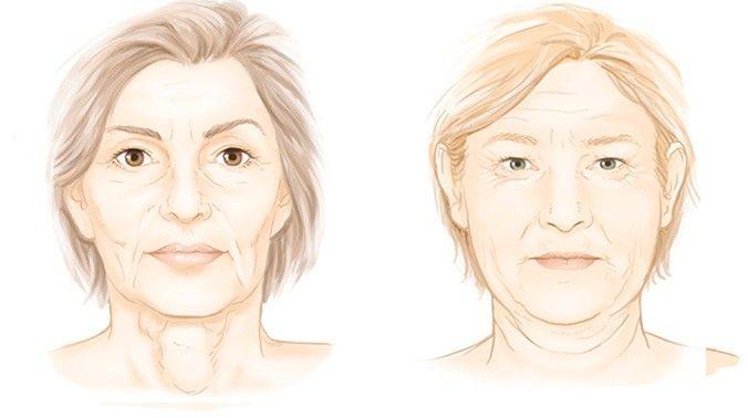 Les signes de vieillissement du visage