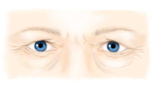 Les signes de vieillissement des yeux