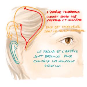 le fascia temporal et l'artère temporale superficielle sont utilisés pour reconstruire une microtie avec le Medpor