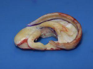 une oreille sculptée dans le cartilage costal aura exactement la forme de l'oreille normale