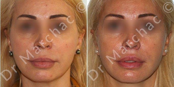 Lifting des lèvres à Paris avant et après l'intervention du Dr Marchac