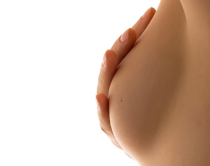 L'hypertrophie mammaire et les solutions du Dr Marchac pour la traiter