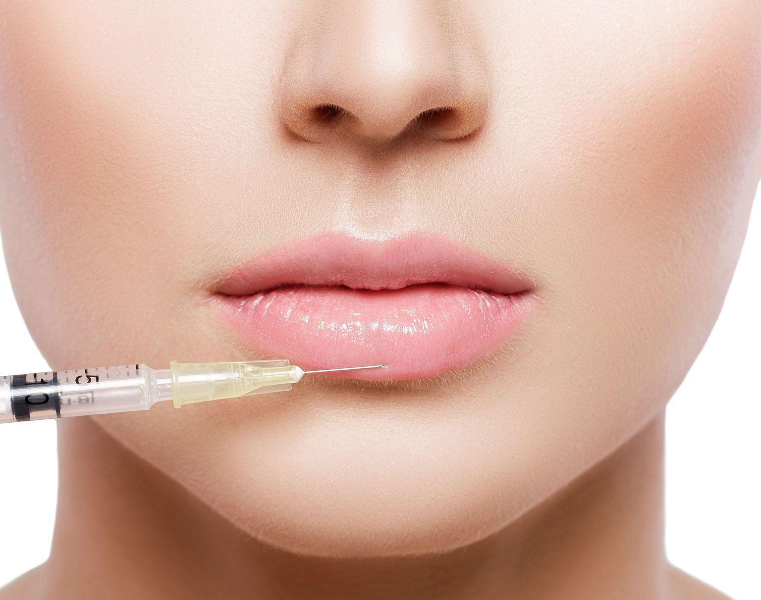 Injection dans les lèvres d'acide hyaluronique à Paris | Dr Marchac