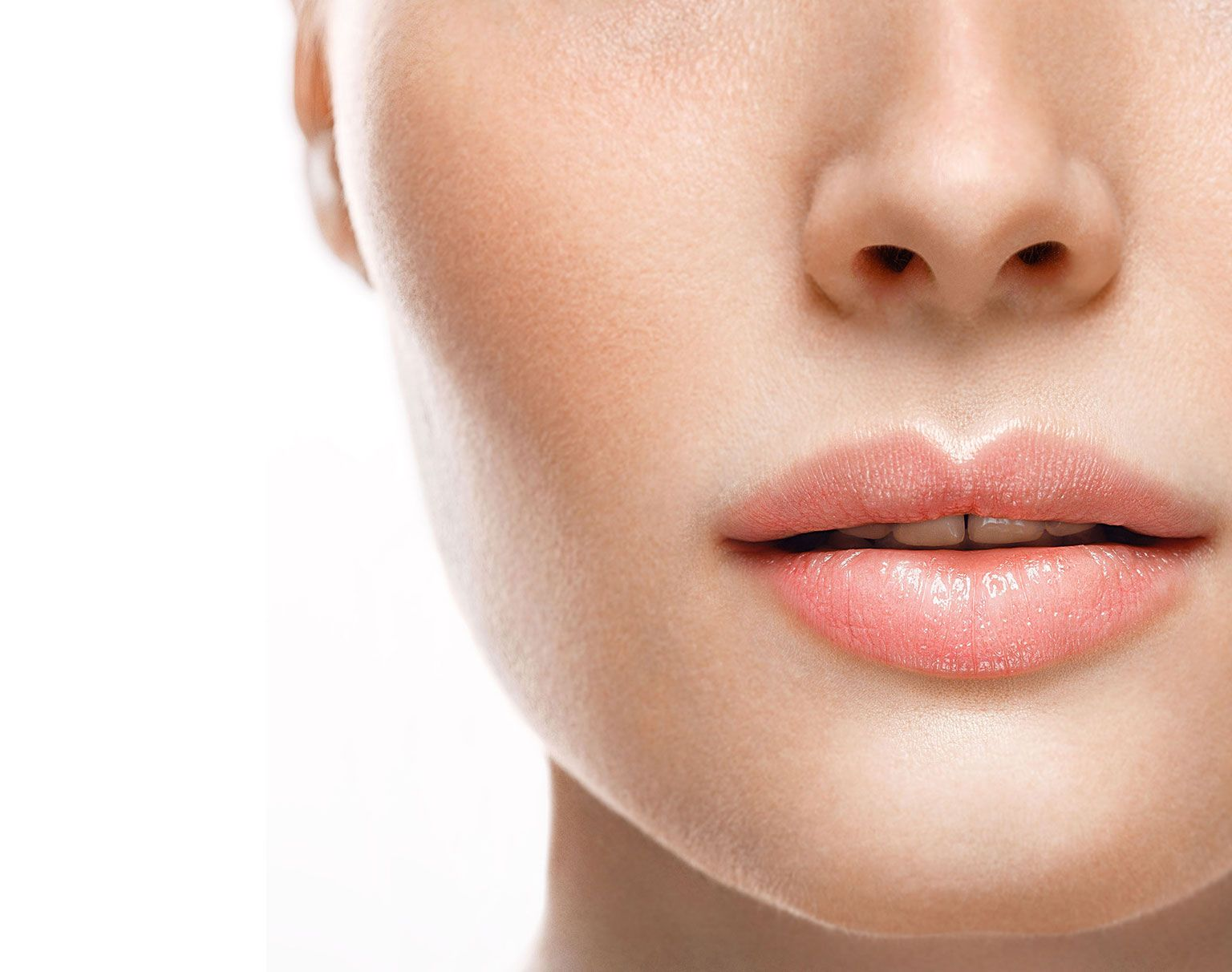 Lifting de la lèvre supérieure à Paris par Dr Marchac