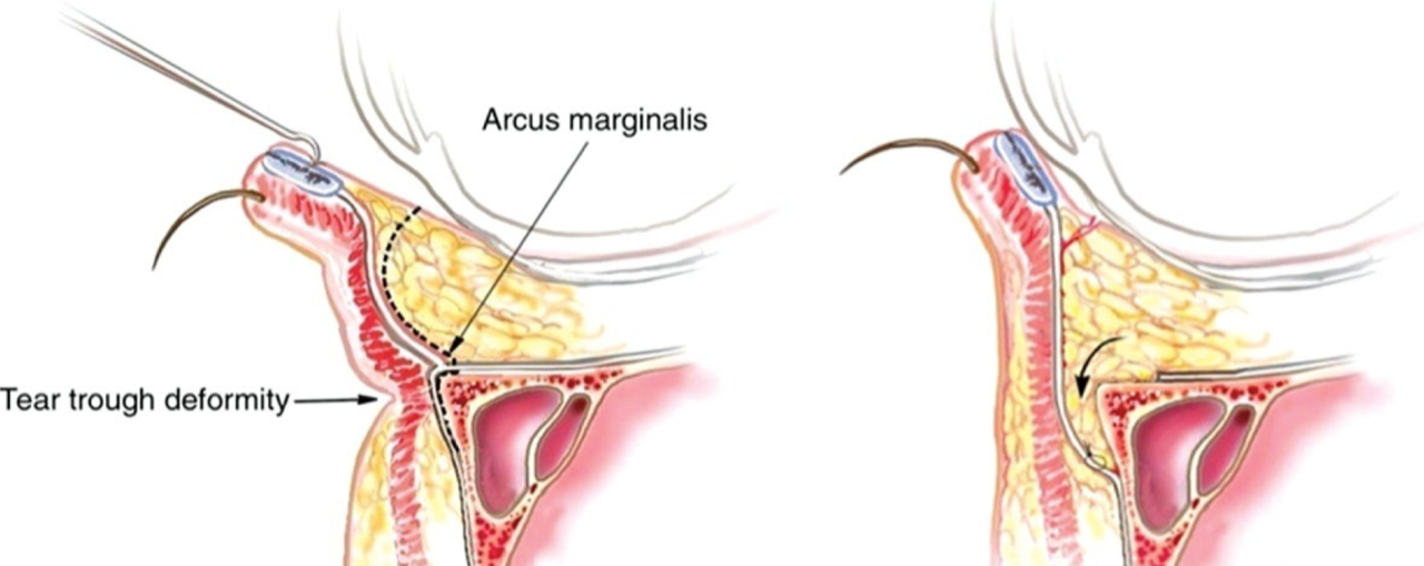 Schéma de blépharoplastie