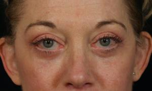 Photo après blépharoplastie : 2 mois après l'opération